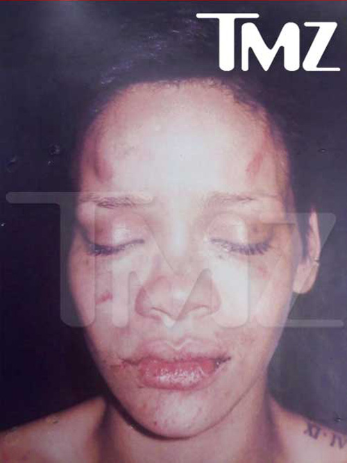 Rihanna after Chris Brown beat her