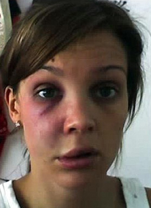 Danielle Lloyd beaten