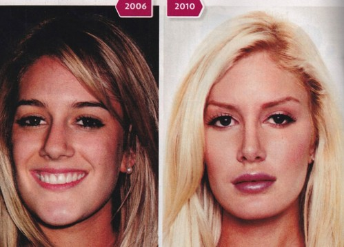 heidi montag surgery before and after. Heidi Montag before and after