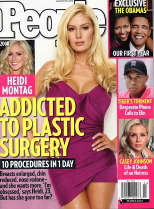 heidi montag plastic surgery before and after people. heidi montag