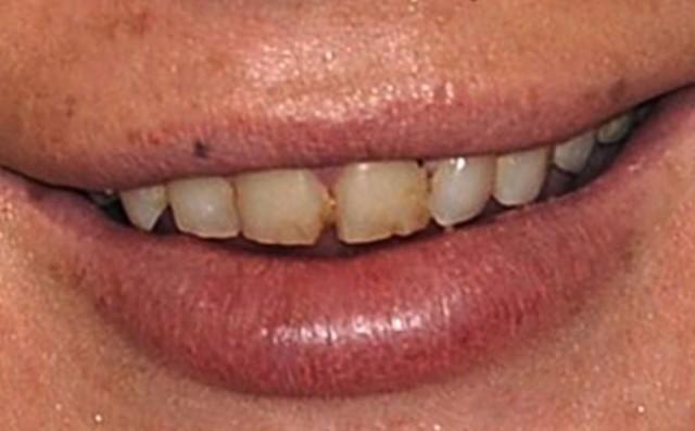 Lindsay Lohan Teeth And Hands