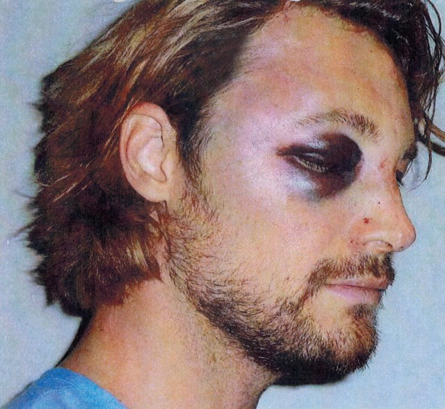 Brutal injuries Gabriel Aubry claims he suffered at hands of Olivier Martinez