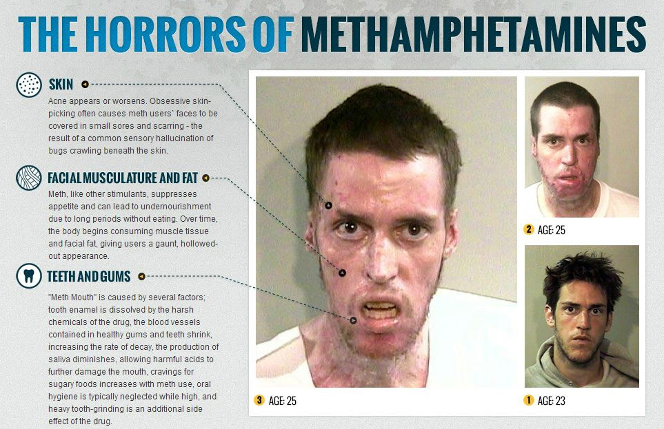 the consequences of using drugs while Physical effects of drug addiction physical effects of drug addiction vary by drug but are the brain with the chemicals dopamine and serotonin during drug use.