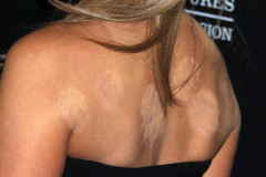 jennifer-aniston-cupping