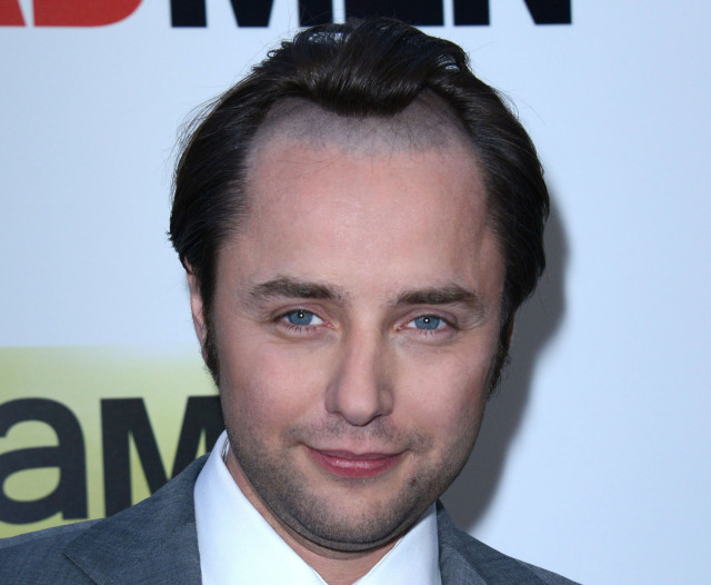 pete-campbell-hairline