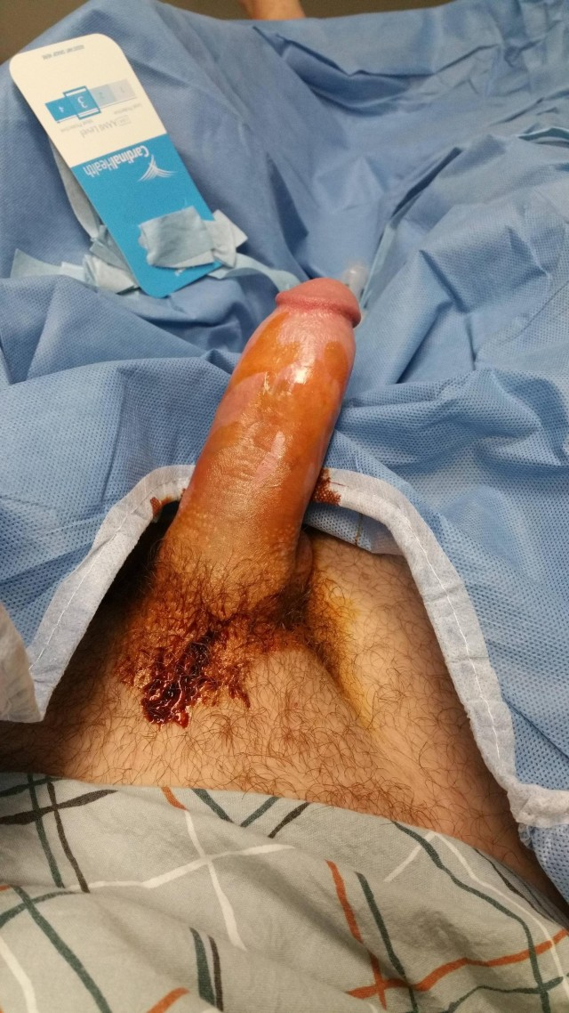 Viagra Injected Into Penis | 198058 | Photos | The Blemish