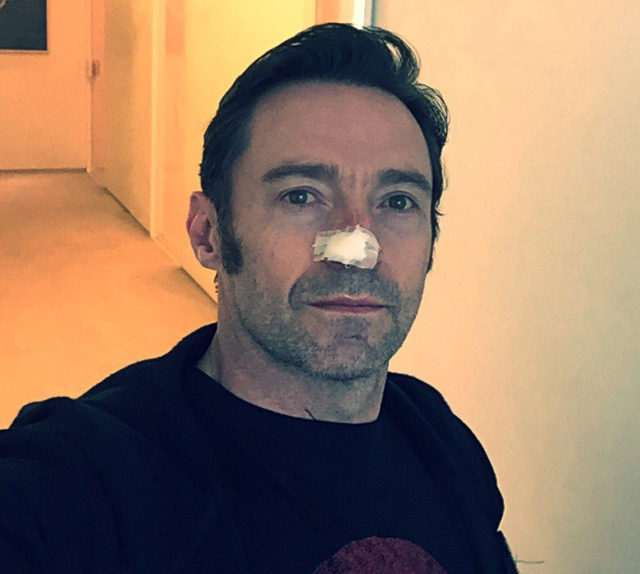Hugh Jackman has another skin cancer removed from nose