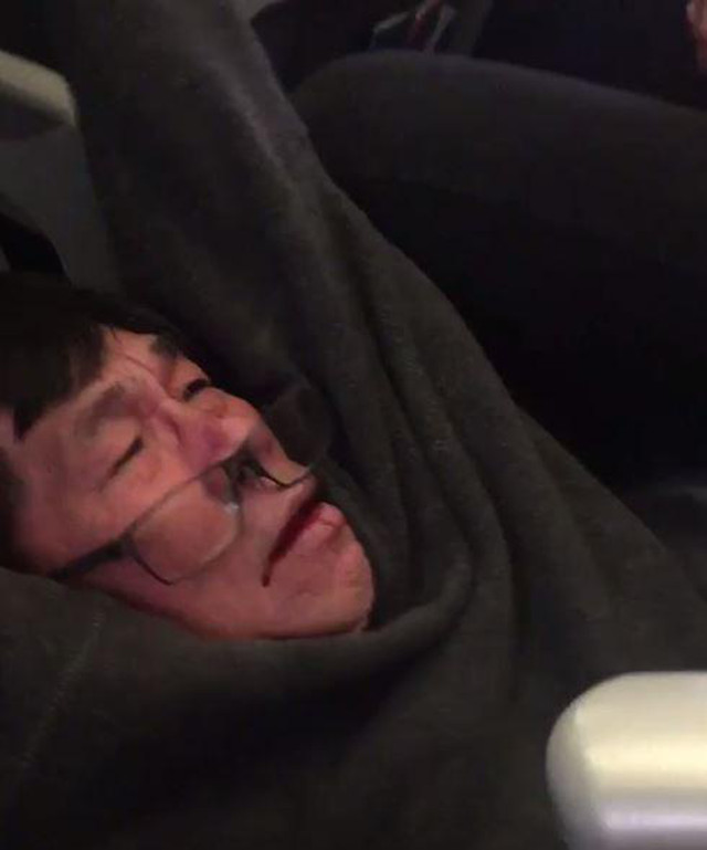 United Airlines: Passenger forcibly removed from flight