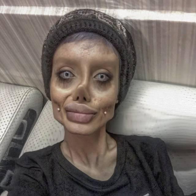 Iranian teenager 'undergoes 50 surgeries' to look like Angelina Jolie