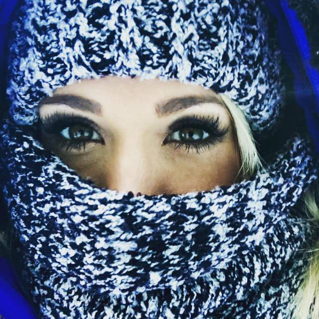 Carrie Underwood says face injury might make her 'look a bit different'