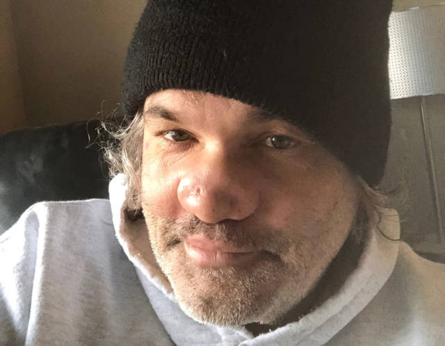 Artie Lange, Somehow Still Alive, Is Heading To Rehab